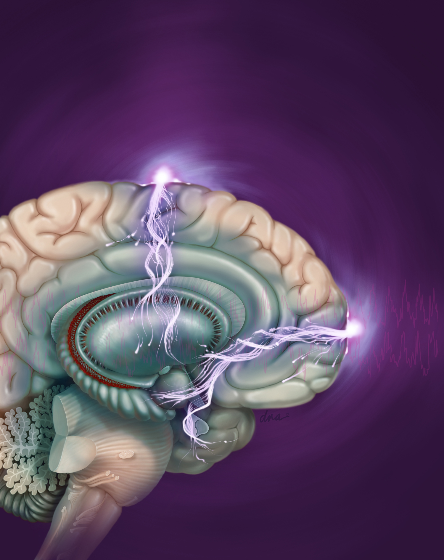 Electroconvulsive therapy (ECT) is recommended for use as a therapy for unresponsive severe depression. The mode of action is not understood. Seizures are electrically induced in patients under anesthesia. Patients have a significant risk of memory loss. Differences in application of treatment come from variation in electrode placement, electrical wavefront and frequency of therapy.